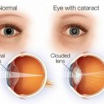 cataract info